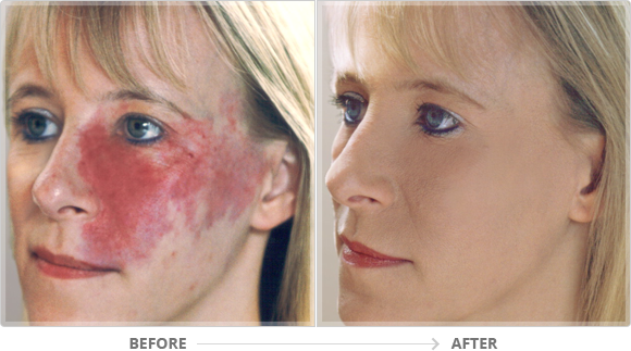 Micropigmentation for Burn Scars   North York Cosmetic Clinic